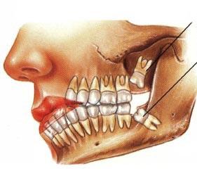 wisdom-teeth-impacted