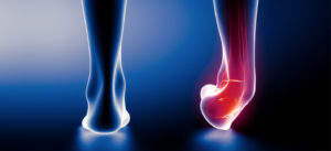 http://www.iwalk-free.com/injury-resource-center/ankle-sprains/